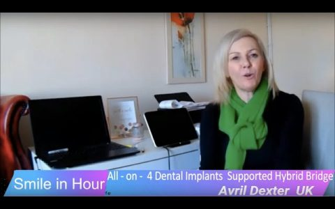 All on 4 Dental Implants London UK Client