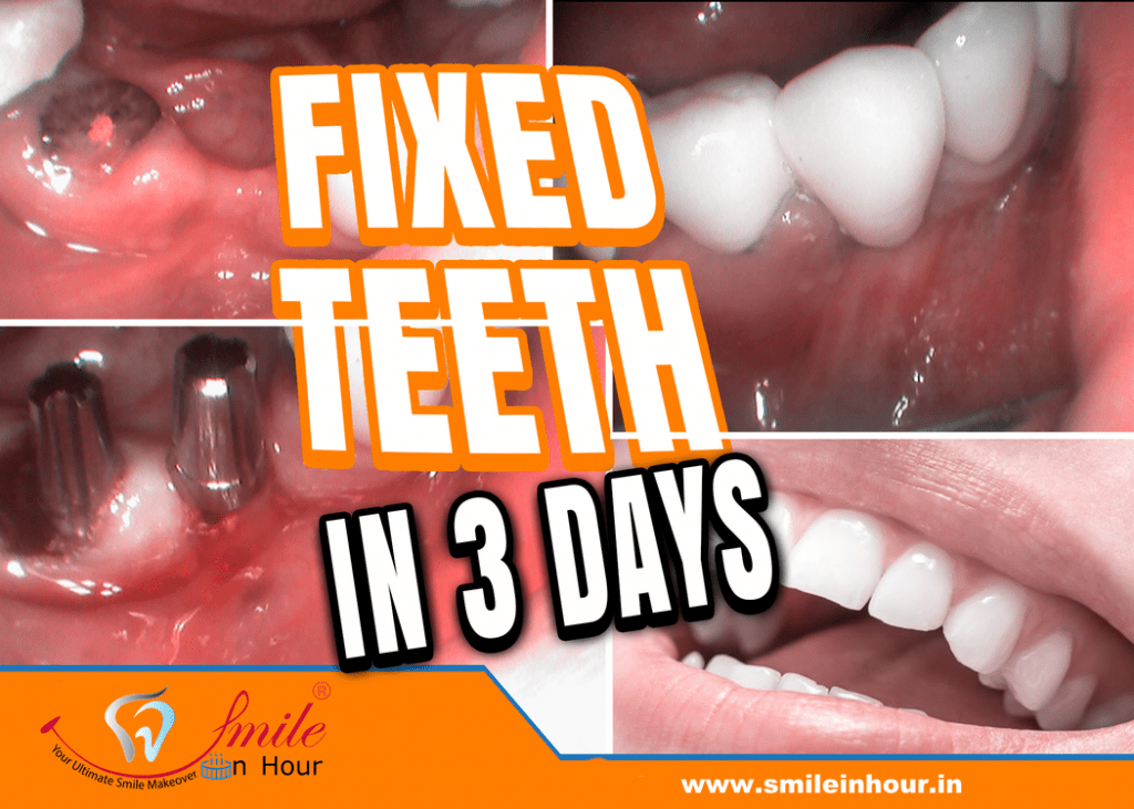 fixed teeth in 3 days india Ahmedabad Mumbai Delhi Smile in hour