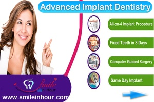 Advanced-Dental-Implants-Services-Smile-in-Hour-India-Mumbai-Ahmedaba-Delhi-Hyderabad-Chennai-London-HP
