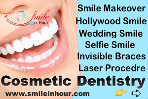 Smile-in-Hour-Specialse-in-Cosmetic-Laser-Dentistry-India-Mumbai-Delhi-Ahmedabad-Hyderabad-Chennai