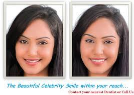 One touch smile by dr bharat agravat smile in hour